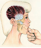 Temporal Tendonitis Headache